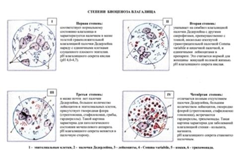 stafilokokk-zolotistiy-v-mazke-iz-vlagalisha